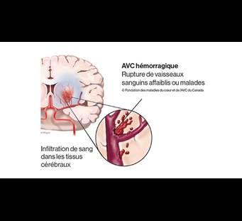Graphique de course hémorragique FR
