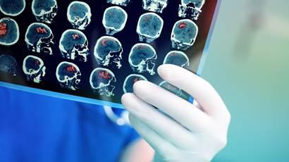 Gros plan de la tenue de la main du scanner cérébral du médecin