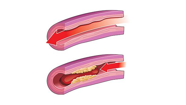 <p>Circulation sanguine normale dans l&rsquo;art&egrave;re saine (en haut) et circulation sanguine bloqu&eacute;e dans l&rsquo;art&egrave;re pr&eacute;sentant une accumulation de plaque jaune et un caillot de sang rouge (en bas).</p>